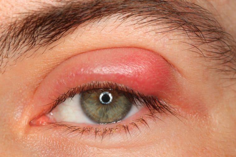 Remedios caseros para perrillas ojo