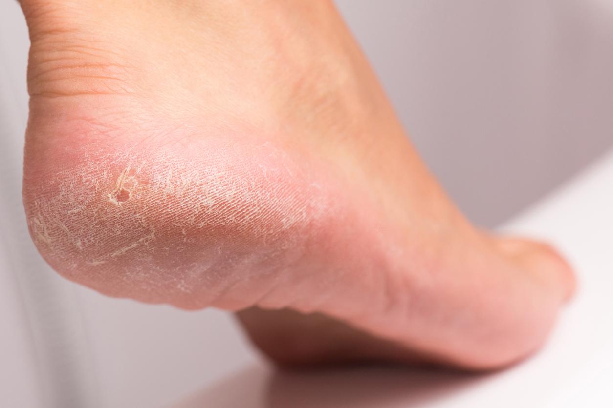 Como quitar durezas delos pies rápido