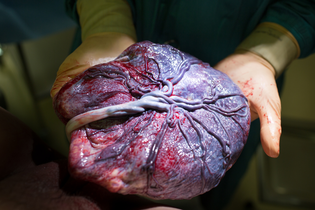 Placenta real