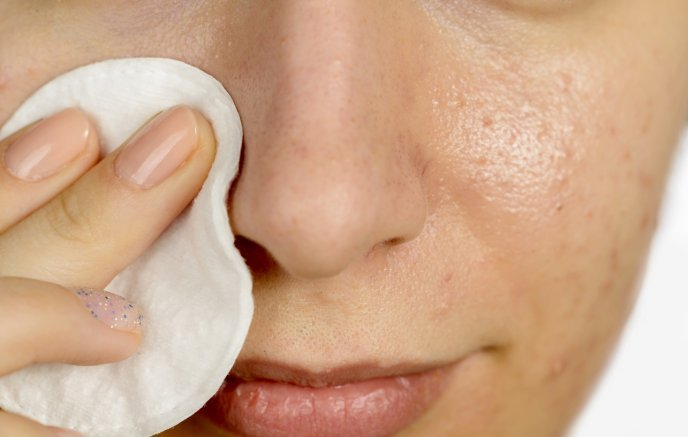 Quia las cicatrices del acné