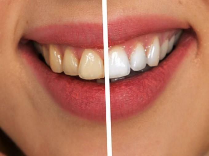 Cada persona aloja un promedio de 700 bacterias en la boca. Foto: Pixabay