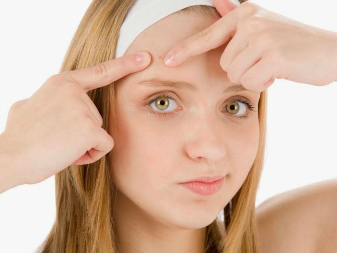 como quitar las espinillas de la cara con sabila