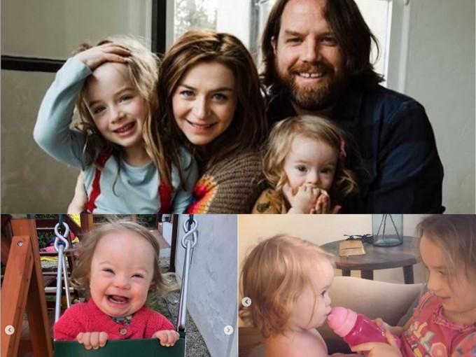 Padres de niños con síndrome de Down mírenlo como OPORTUNIDAD  Fotos: Instagram