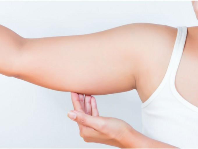Brazo: Para que te olvides de la flacidez de los brazos, te recomendamos los siguientes ejercicios. /Cortesía:iStock